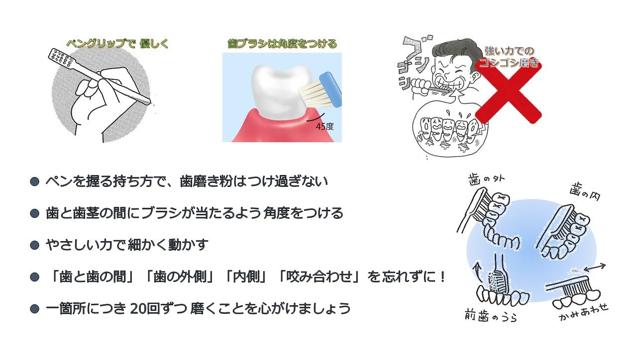 歯磨きのコツ.jpg